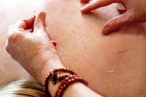 Acupuncture Needles FAQ